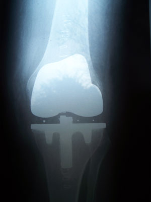 total_knee_replacment_-ap_-2008-300
