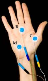 skin electrodes1