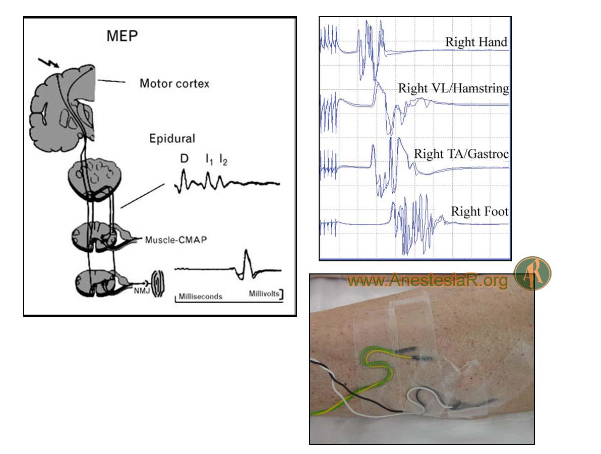 Figura 3.- Potenciales evocados motores. Electrodos de aguja para registro de potencial de acción muscular.