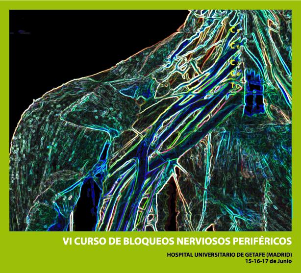 portada - VI CURSO DE BLOQUEOS NERVIOSOS PERIFERICOS