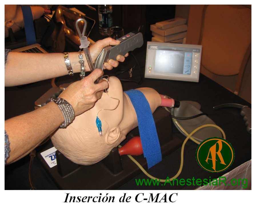 insercion-C-Mac