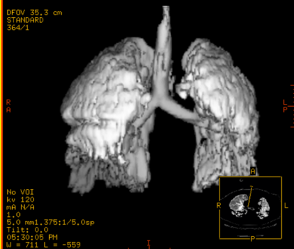 SDRA pulmones