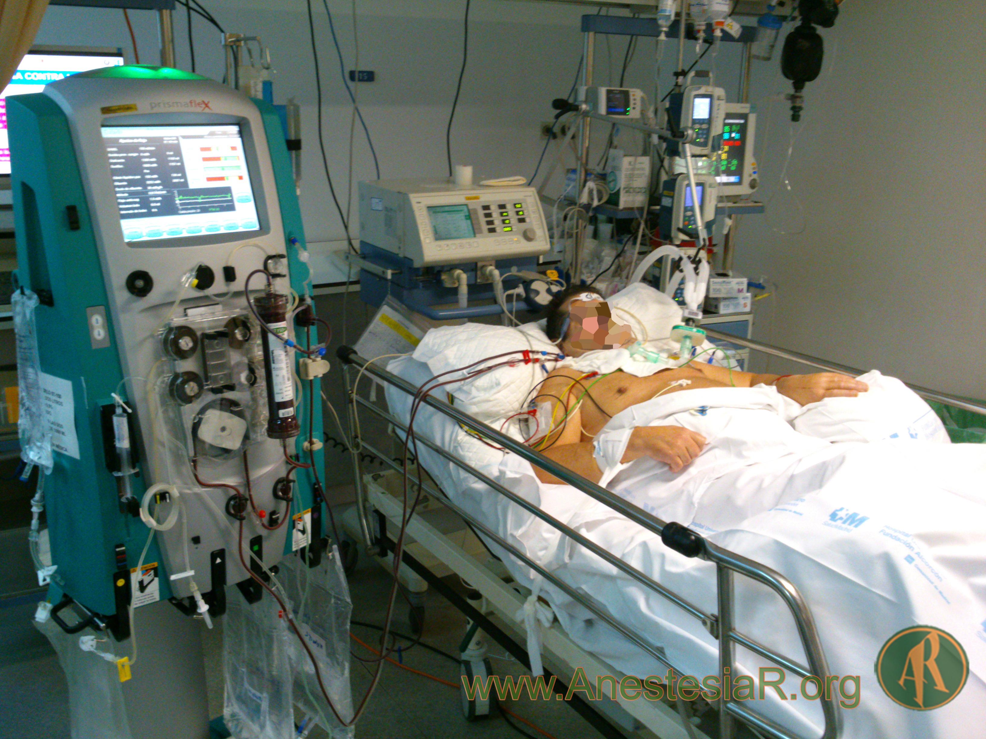 paciente critico REA
