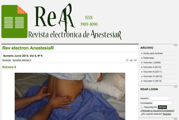 Revista electrónica de AnestesiaR Junio 2013