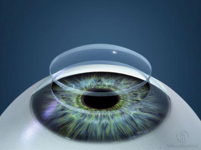 cirugia_retina_vitreo1