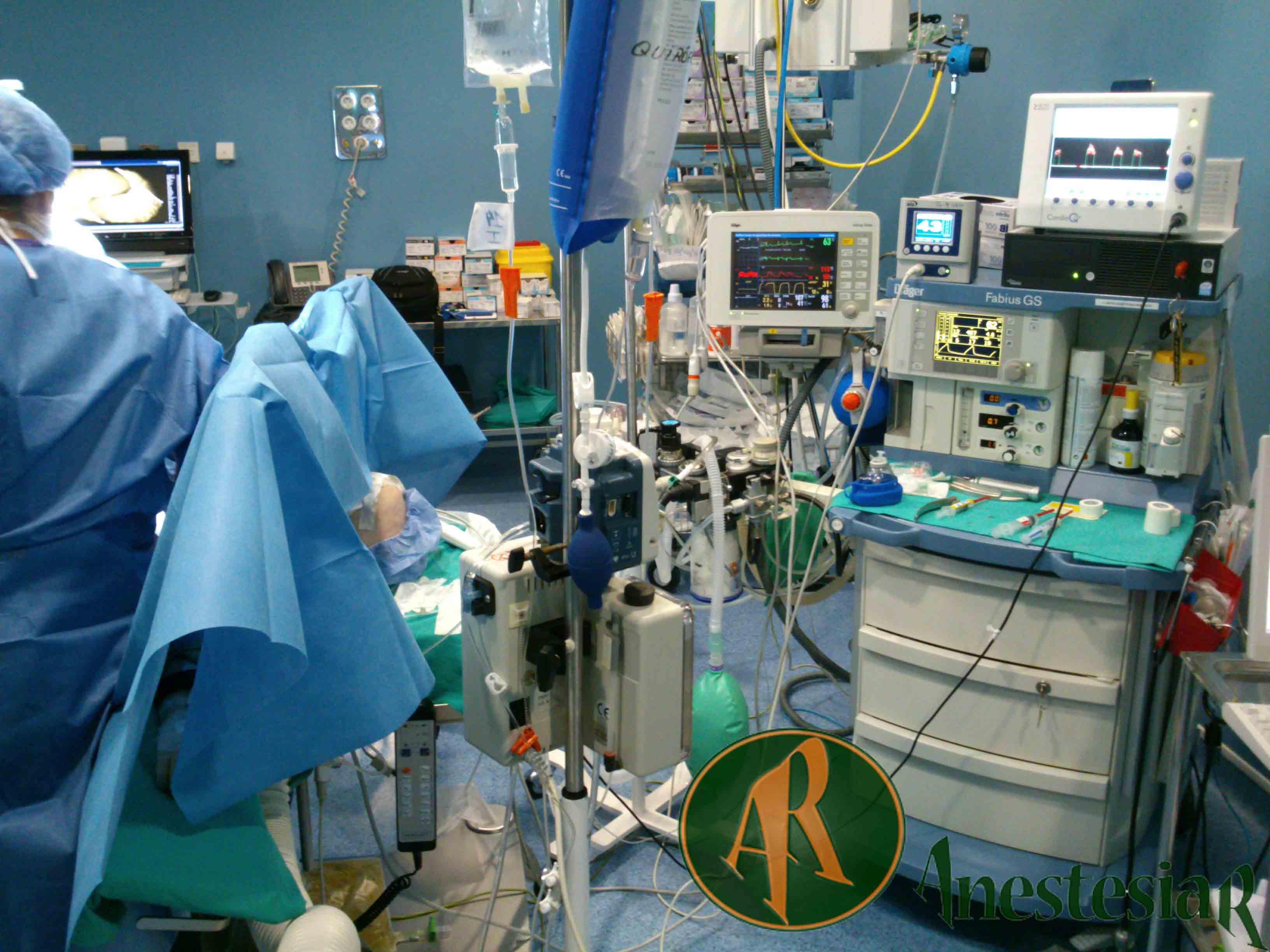 Monitorizacion Hemodinamica con Cardio Q p