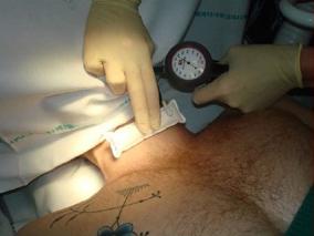 intubacion2