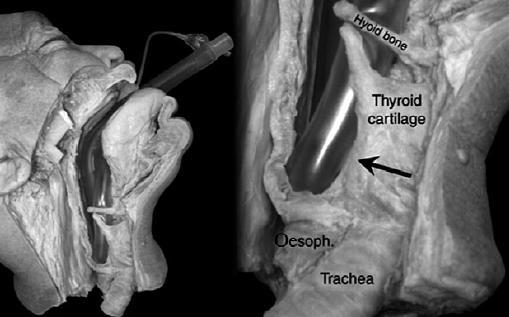 lesion-pares-craneales