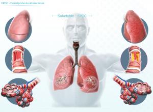 corticosteroides_figura-2