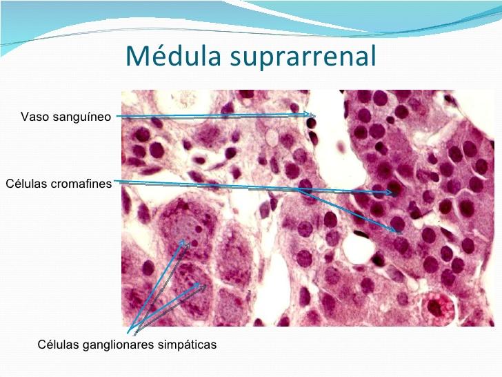 feocromocitoma_3