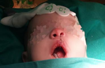intubacion-infantil-portada