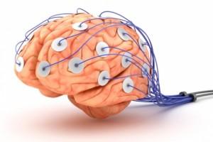 neurofisiologia-y-anestesia_5