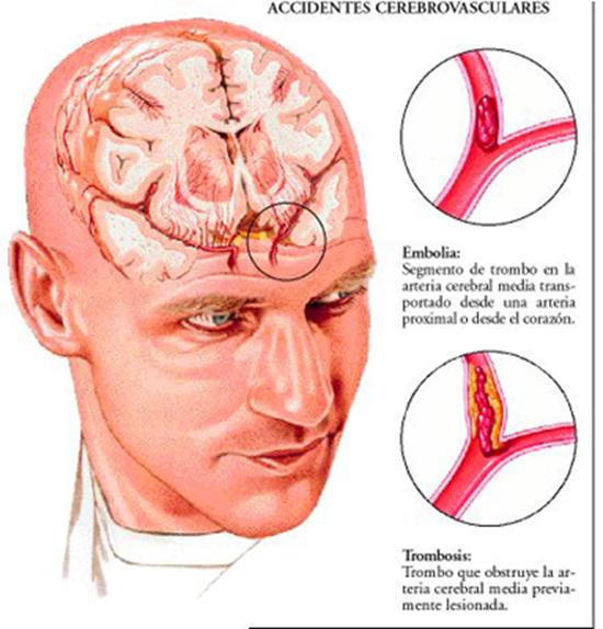 Tomada de http://cetis104enfermedadvascularcerebral.blogspot.com.es/2012/06/problema-que-es-laenfermedad-vascular.html
