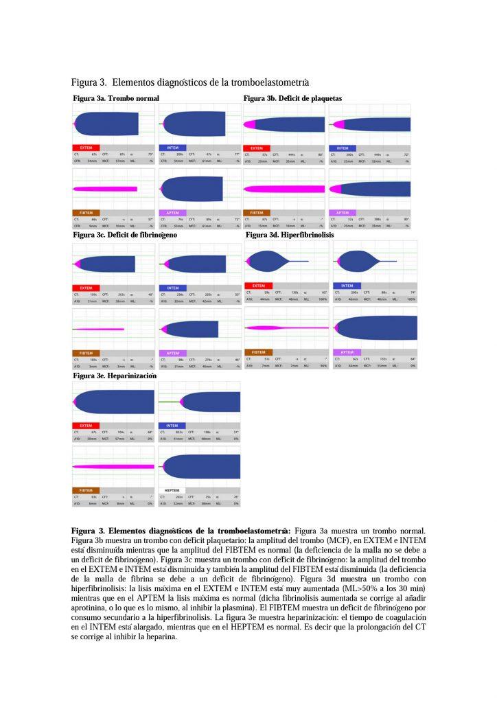 Figura 3. Elementos diagnósticos de la tromboelastometría