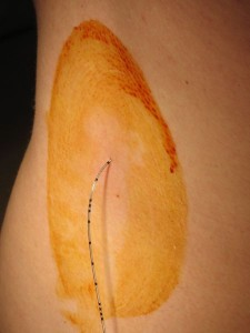 450px-epidural