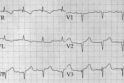 Tutorial de electrocardiografía III. Bradiarritmias y crecimientos de cámaras cardiacas