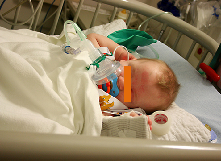 TCI pediatric