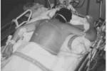 Posición de prono en pacientes con Síndrome de Distrés Respiratorio Agudo Grave.