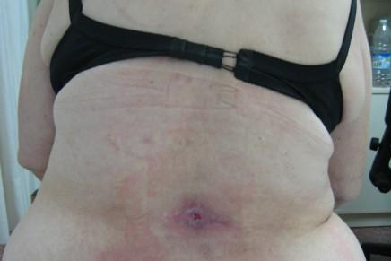 Infección cutánea en el punto de punción de anestesia subaracnoidea