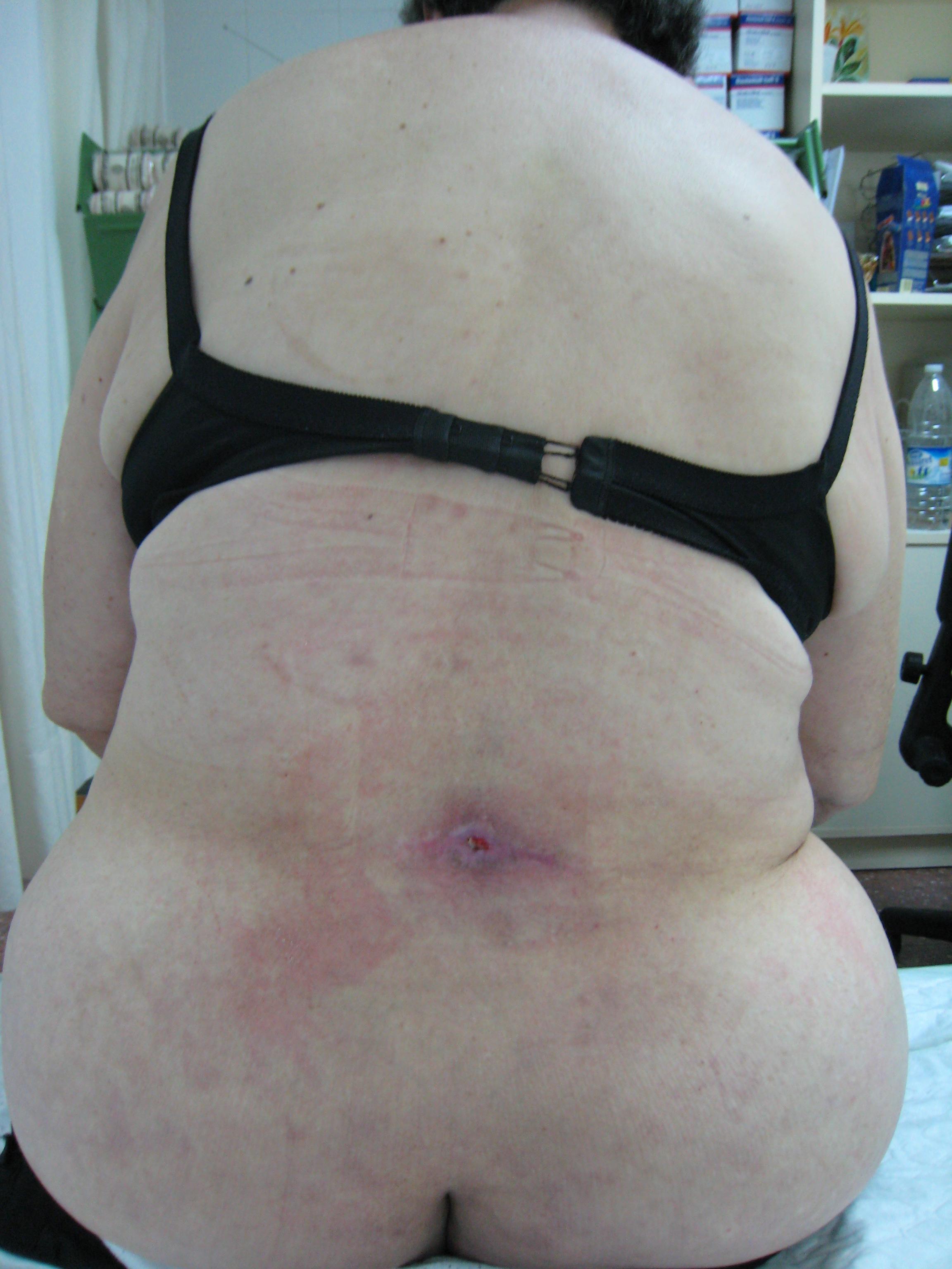 Fig. 1. Paciente con infección cutánea tras desbridamiento y cura.