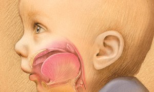RS_PediatricAirway