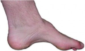 Charcot-marie-tooth_foot