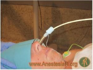 Rotura del neumotaponamiento de un tubo endotraqueal al introducirlo mediante un fibroscopio nasal en una paciente despierta