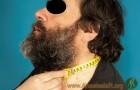 Circunferencia del cuello - VÍA AÉREA DIFÍCIL EN UN PACIENTE CON OBESIDAD MÓRBIDA