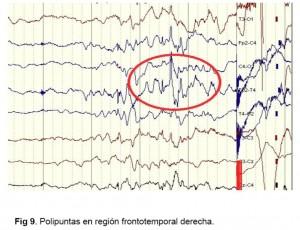 EEG - figura 9