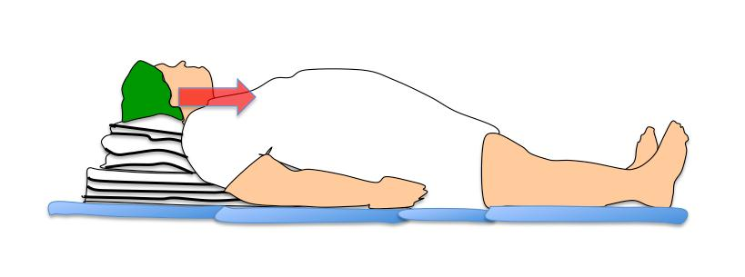 NAP 4 - Obesidad - Figura 1 - Posición en rampa - alineando el eje horizontal del conducto auditivo externo con la escotadura esternal