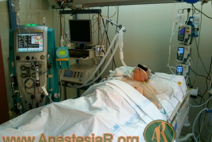Interrupcion Diaria de la Sedacion en Pacientes Criticos en Ventilación Mecanica
