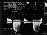 Cálculo de la presión sistólica del ventrículo derecho