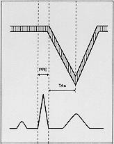 Figura 8.- Tiempo de aceleración de la arteria pulmonar o TSVD. Patrón tipo I.