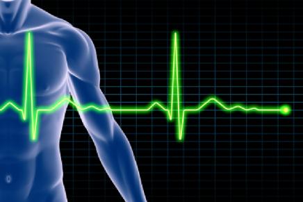 SQTL (Síndrome QT largo) y Anestesia