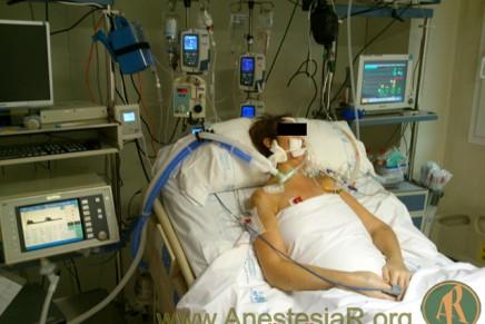 Destetando a los pacientes del Respirador