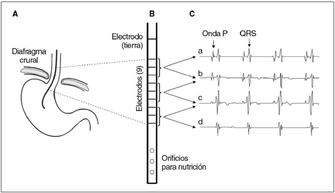 Figura 2. Sistema NAVA - posicionamiento del catéter