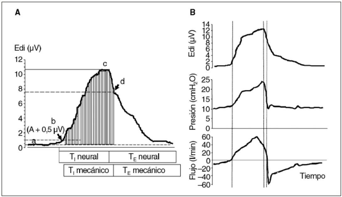 Figura 3. La señal eléctrica diafragmática