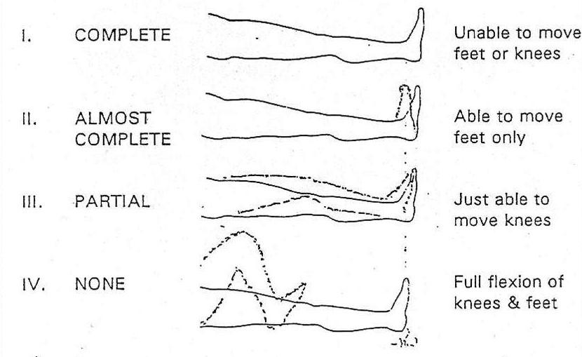 Figura 1.- Test de Bromage
