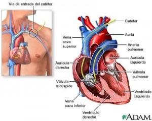 Catéter de arteria pulmonar