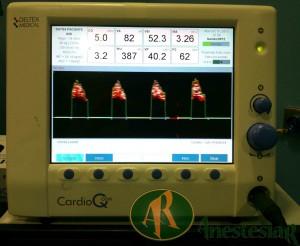 Monitorizacion Hemodinamica Intraoperatoria con Cardio Q p