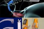 Videolaringoscopios Pentax-AWS y Glidescope como alternativa al laringoscopio Macintosh en la dificultad de intubación prevista