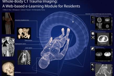 Papel del TAC Total Body en el paciente politraumatizado grave y hemodinámicamente inestable que requiere cirugía
