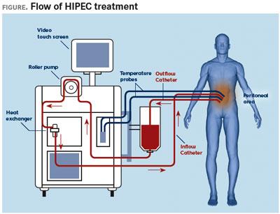 HIPEC-3
