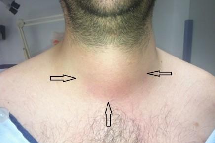 Manejo de la Vía Aérea en Paciente con Absceso Periepiglótico