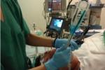 Comparativa entre el Glidescope y el laringoscopio de Macintosh para la intubación con tubos de doble luz