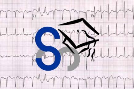 Fibrilación auricular inesperada al monitorizar en quirófano. Caso SENSAR del trimestre