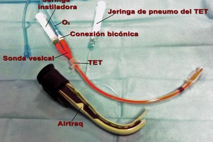 IOT despierto con Airtraq en pacientes con Vía Aérea Difícil Conocida. Un modo diferente de intubar con Airtraq