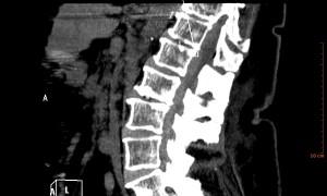 Hematoma Subdural Espinal - 3