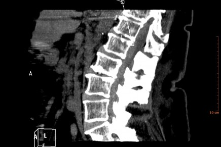 Hematoma Subdural Espinal: una rara complicación de la Anestesia Regional. A propósito de un caso