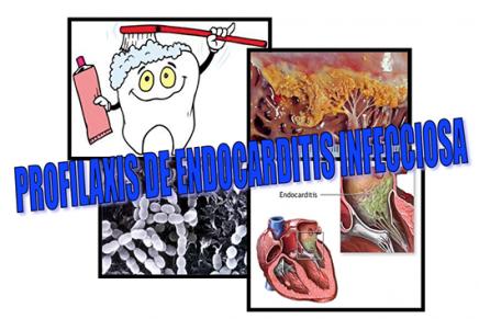 Profilaxis de la Endocarditis infecciosa. ¿En qué guías nos basamos?